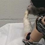 La Storia di Francesco che ha costruito un braccio bionico con materiale di riciclo